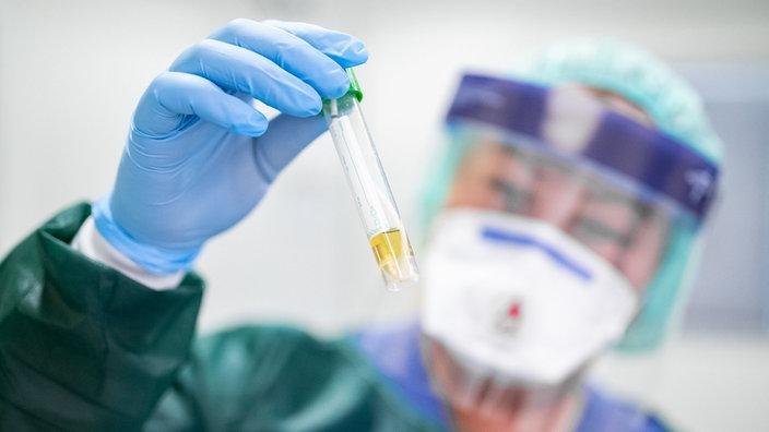 Warum der Kapitalismus bei der Bekämpfung des Coronavirus kläglich scheitert